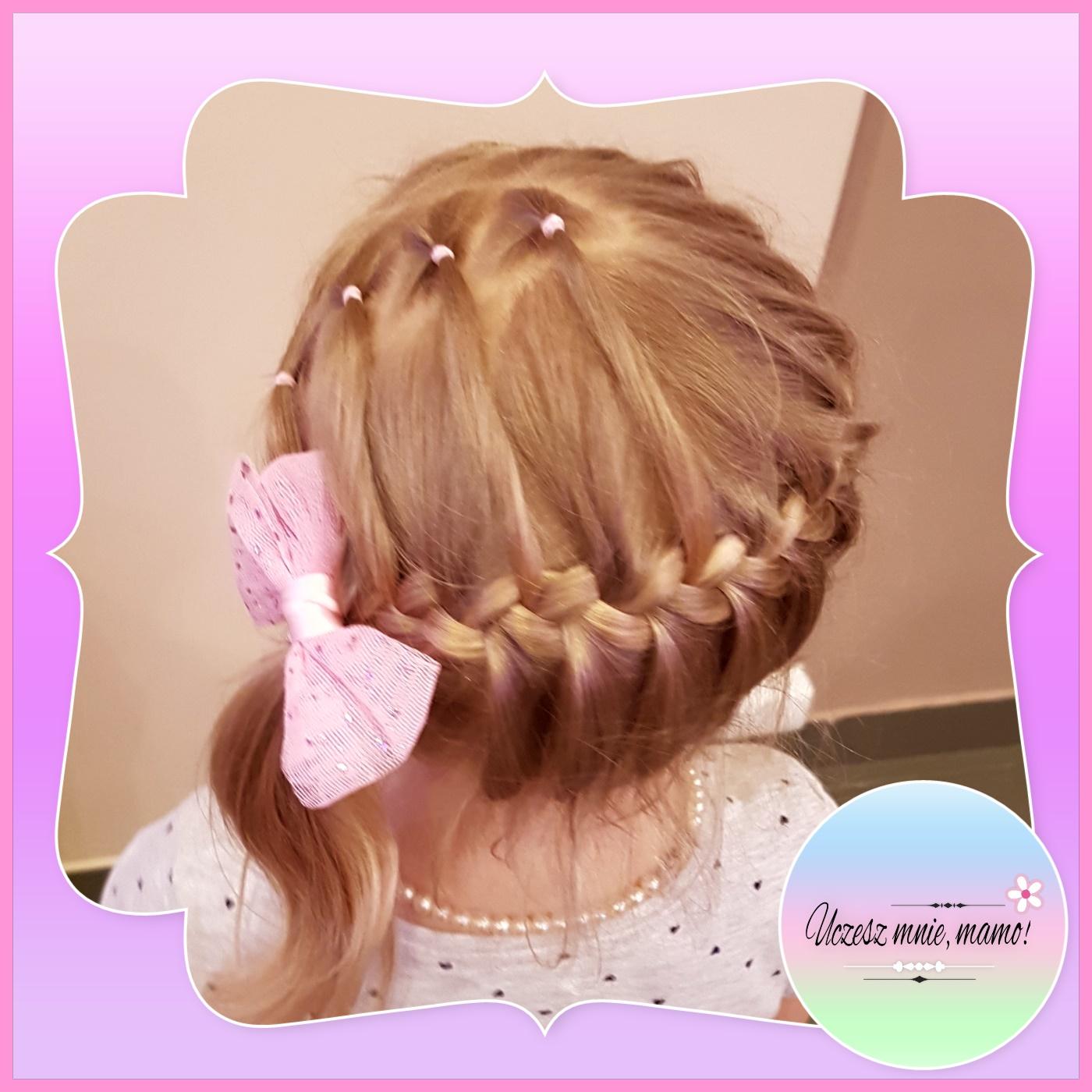 wypadanie włosów u 1 5 rocznego dziecka